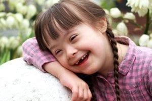 Dags att ändra synen på ofödda barn med Downs syndrom